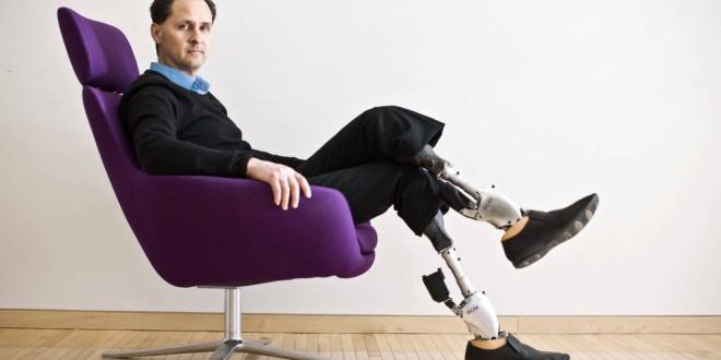 Piernas inteligentes y manos impresas: las prótesis más avanzadas del mundo