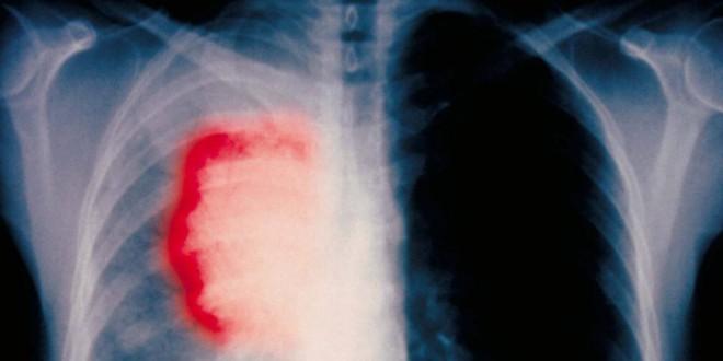 La clave para frenar al cáncer que más mata está en la nariz