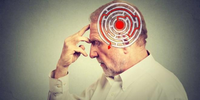 Una técnica permite detectar el alzhéimer años antes de los primeros síntomas