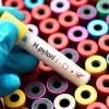 La táctica del Helicobacter pylori para infectar al 50% de los españoles