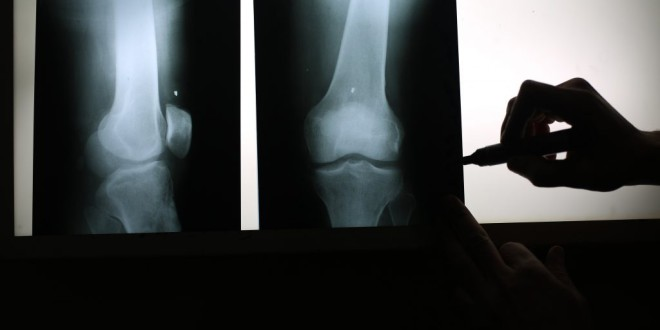 La lucha contra la osteoporosis desde casa