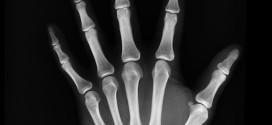 La UGR descubre que 15.000 españoles pueden sufrir una rara enfermedad ósea y no saberlo